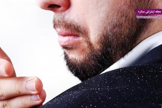 درمان شوره سر؛ از بین بردن شوره سر با 7 روش خانگی