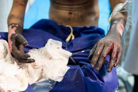 آسیب دیدن 488 نفر در حوادث چهارشنبه سوری یک ماهه گذشته تا به امروز
