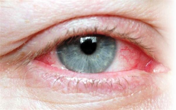 خشکی چشم و عوامل شایع بوجود آمدن آن
